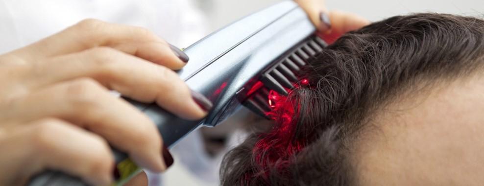 درمان ریزش مو با استفاده از روش میکرو LED