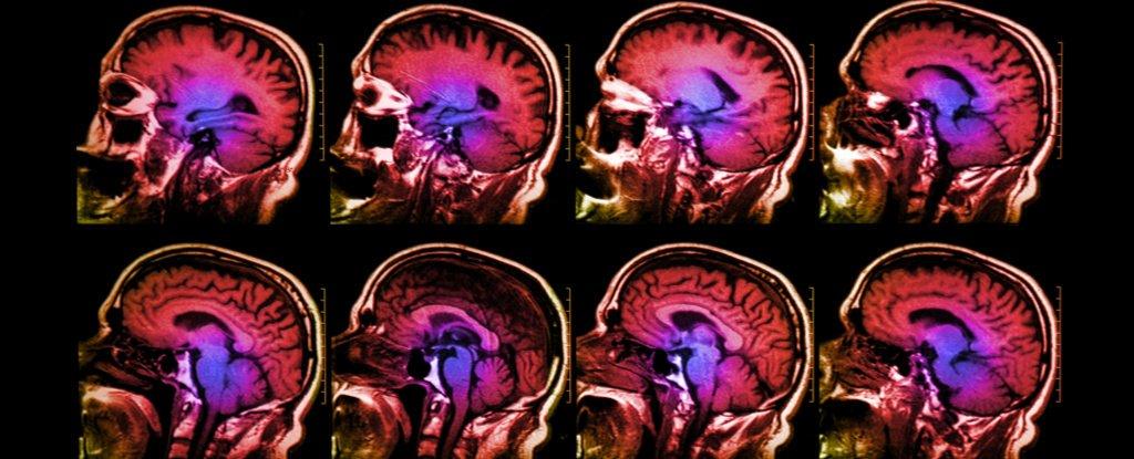 تصویر اسکن مغز
