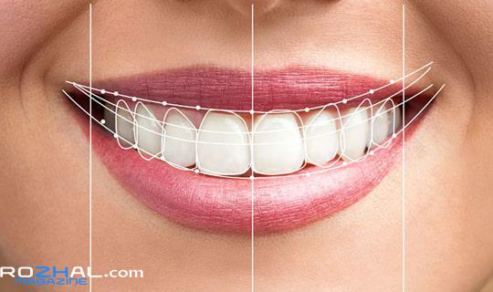 طراحی لبخند چیست ؟