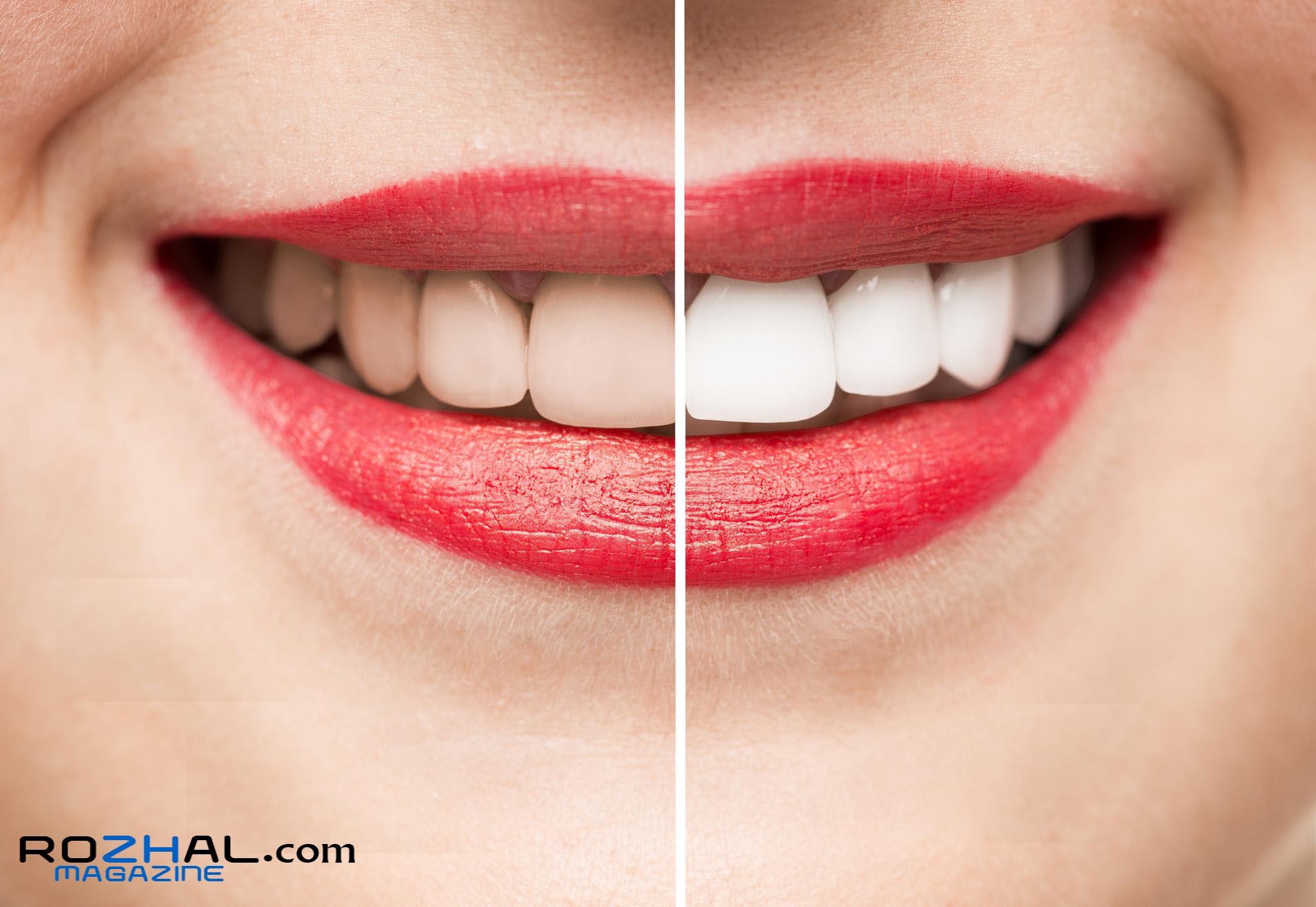 نکات مهمی که باید قبل از لمینیت کامپوزیتی دندان بدانید