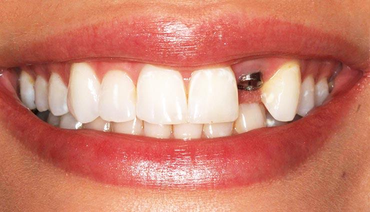 ایمپلنت دندان-rozhal.com